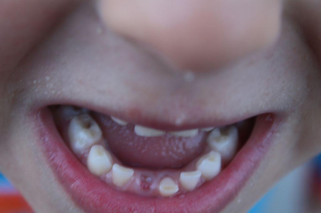 iliyan padnalo zubche
